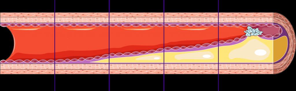 Artherosklerose (Kapitel Komplikationen)